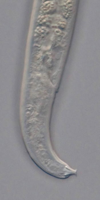 Holotype female posterior end