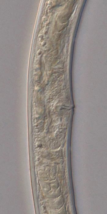 Holotype female midbody of Loveninema unicornis