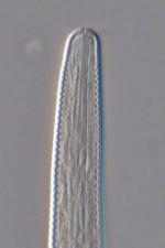 Holotype male anterior end of Setostephanolaimus tchesunovi