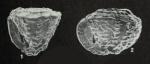 Pseudorotalia schroeteriana (Parker & Jones in Carpenter, 1862)