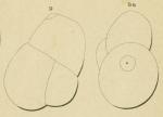 Globulina deformis Orbigny, 1852