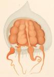 Dissonema gaussi from Vanhöffen (1912)