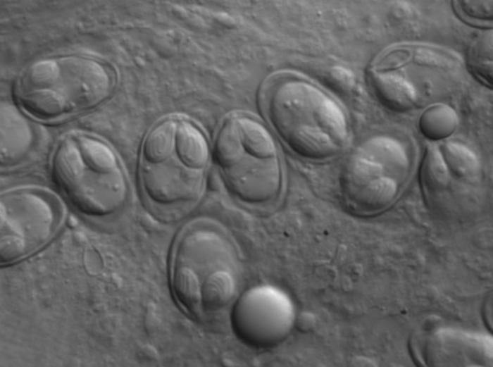 Fresh myxospores of Myxobolus klamathellus from subcutaneous cyst