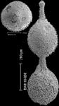 Lotostomoides asperulum (Neugeboren, 1852) IDENTIFIED SPECIMEN