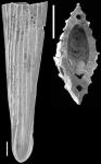 Mucronina hasta (Parker, Jones & Brady, 1865) IDENTIFIED SPECIMEN