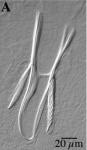 Microdalyellia armigera (Schmidt, 1861) Gieysztor, 1938a