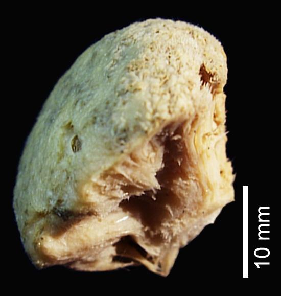 Cinachyrella anatriaenilla Holotype