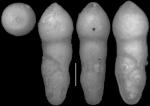 Ellipsoidella tappanae Hayward & Van Kerckhoven, 2012. Holotype