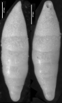 Laterohiatus acus Cushman & Bermudez, 1937 Holotype