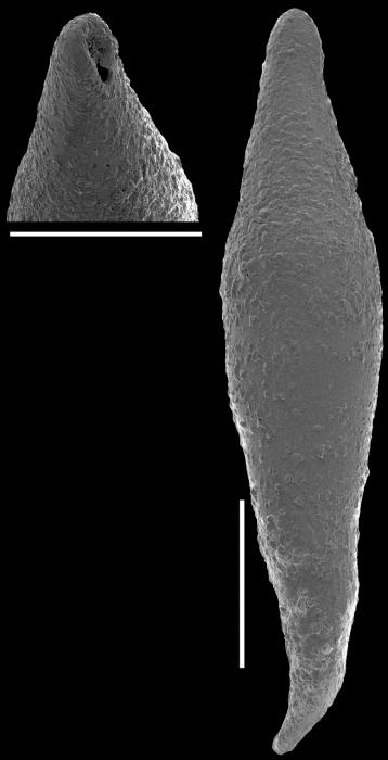 Laterohiatus acus (Cushman & Bermudez, 1937). identified specimen