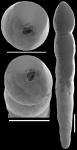 Nodosarella gracillima Cushman, 1933. Identified specimen