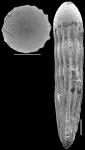 Nodosarella kohli Hayward & Van Kerckhoven 2012. Paratype