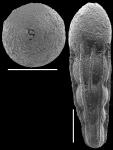 Nodosarella kohli Hayward & Van Kerckhoven, 2012. Paratype