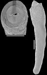 Nodosarella lorifera (Halkyard, 1918). Identified specimen