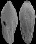 Neopleurostomella pendula (Boltovskoy & Watanabe, 1985) Identified specimen