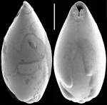 Neopleurostomella polymorpha (Popescu & Crihan, 2005). Identified specimen