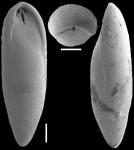 Obesopleurostomella boltovskoyi Hayward, 2012. Holotype