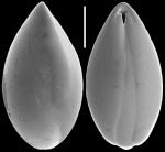 Obesopleurostomella pleurostomella (Silvestri, 1904) Identified specimen