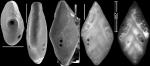 Pleurostomella frons Todd, 1957. Identified specimen.