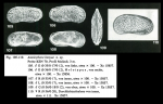 Amnicythere kenyae Jellinek, 1993 from original description
