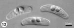 Ceratomyxa dehoopi sp. n. from Clinus superciliosus