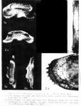 Triebelina sertata Triebel, 1948, from original description