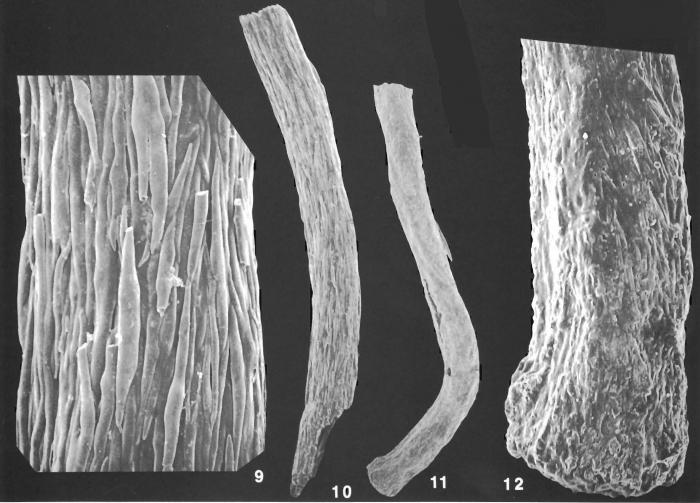 Hyperammina novaezealandiae Heron-Allen and Earland identified specimen