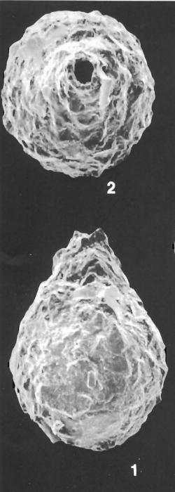 Lagenammina pacifica Hofker identified specimen