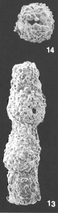 Pseudonodosinella nodulosa (Brady) identified specimen