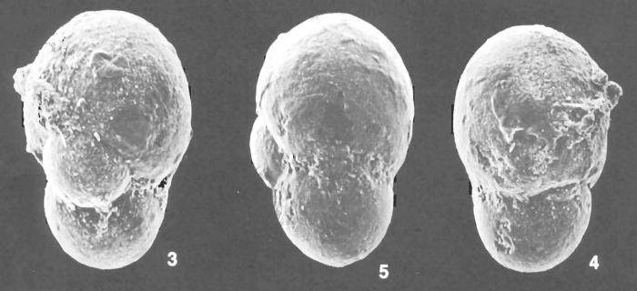 Cystammina pauciloculata (Brady) identified specimen