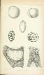 Archaediscus karreri Brady, 1873