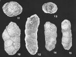Karreriella pseudowrighti Loeblich & Tappan Holotype and Paratype specimens