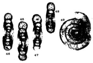 Ammarchaediscus (Ammarchaediscus) bozorgniae Conil & Pirlet, 1974