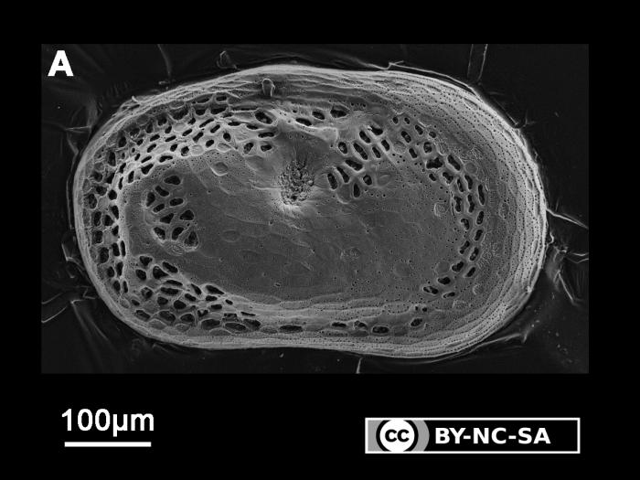 Cytherelloidea sp. 1