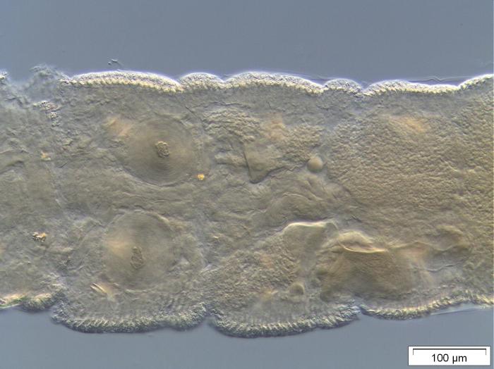 Stylodrilus sanguineus (genital area)