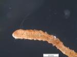 Slavina appendiculata (anterior part)