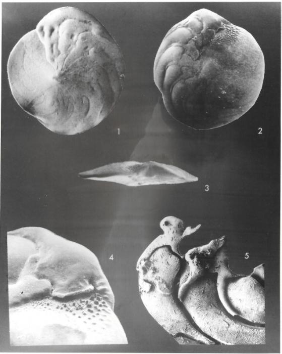 Amphistegina bicirculata Larsen, 1976