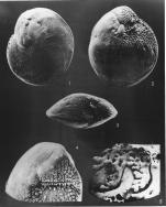Amphistegina lobifera Larsen, 1976