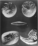 Amphistegina papillosa Said, 1949