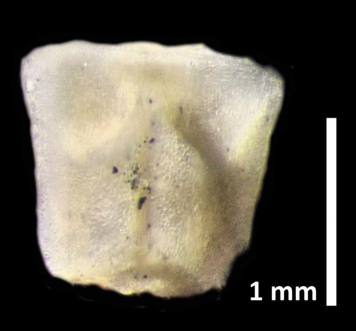 Rhizocrinus conifer AH Clark, 1909, holotype USNM 2279