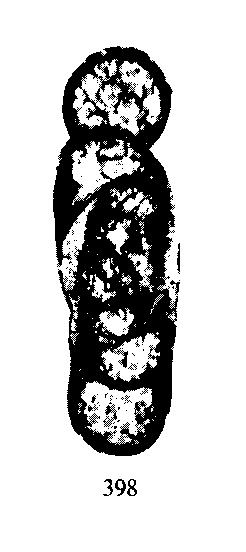 Planoarchaediscus concinnus Conil & Lys, 1964
