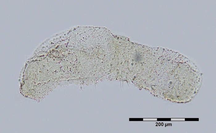 Chaetogaster setosus (Netherlands)