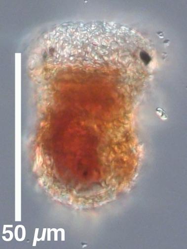 Tintinnopsis compressa