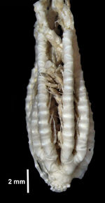 Antedon abyssorumCarpenter, 1888