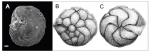 Amphistegina martybuzasi Wilson, Ramkissoon & McLean, 2011 types