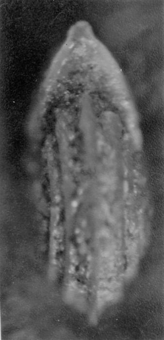 Lenticulina stachi Huang, 1967
