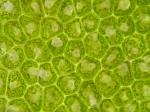Chlorophyta (green algae)