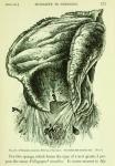 Poliopogon amadou