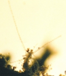 Rathkea octopunctata