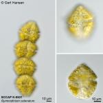 Gymnodinium catenatum